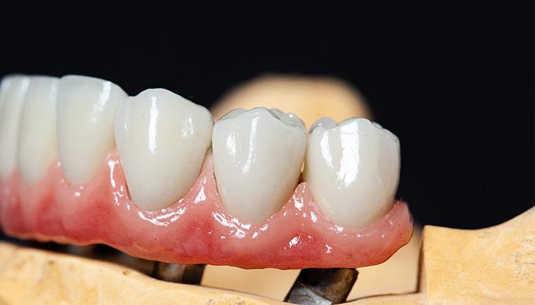 Prótesis dental en Granada